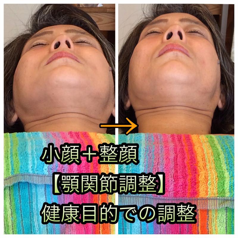 健康目的での小顔+整顔効果!